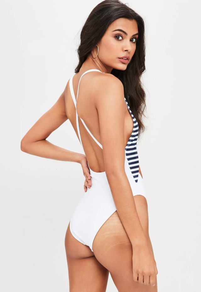 Missguided Model Stretch Marks