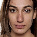 Acne Beauty Trend
