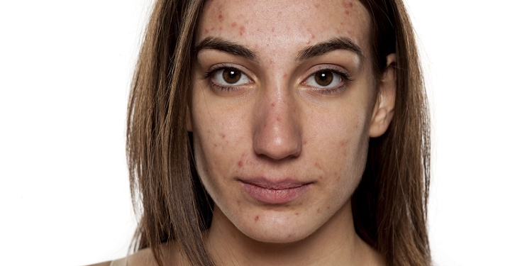 Acne Beauty Trend