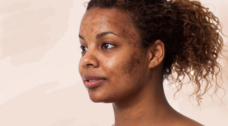 Woman Acne Scars