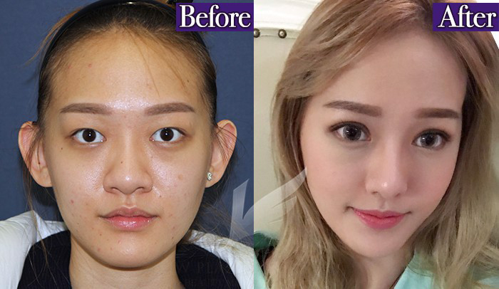 Most Popular Beauty Enhancements That K-Pop Stars Are Known For