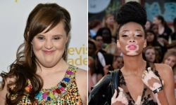 11 Women Who Have Proved That Beauty Has No Boundaries