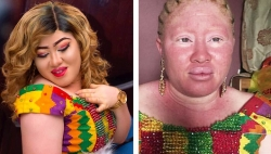 The Internet Can't Handle The Makeup Transformation On This Bride With Albinism