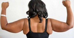 Loose Skin After an Extreme Weight Loss??? Read This.